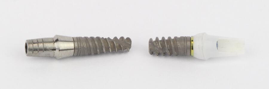 2 Zahnimplantate