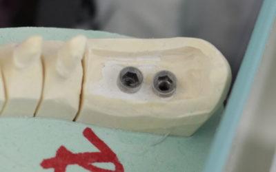 Fogászati biztosítás implantátum