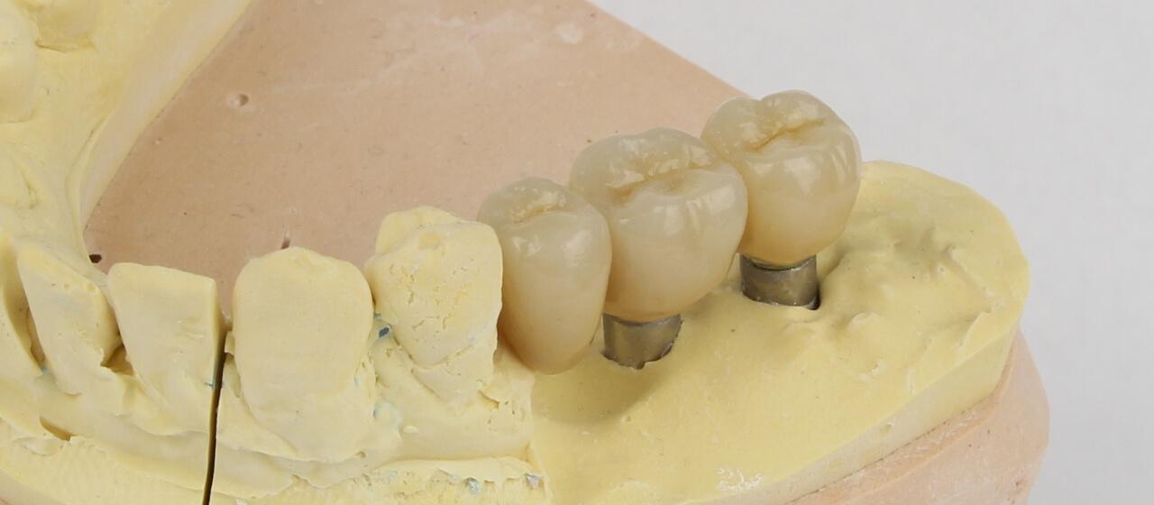 Haltbarkeit von Zahnimplantaten