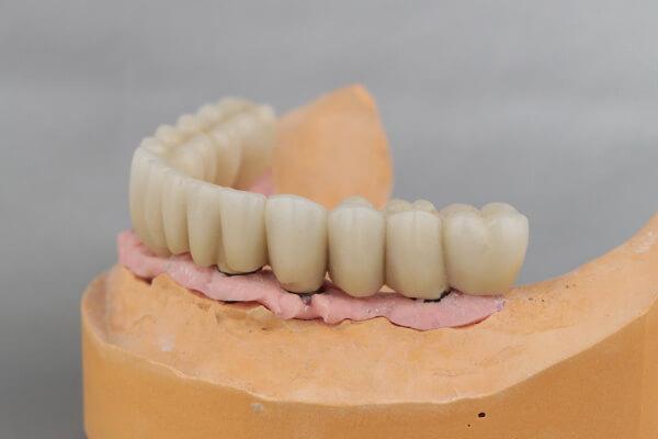 feste Zahnersatz